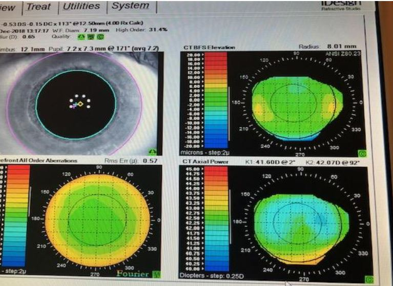 Wavefront Guided LASIK